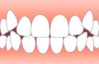 歯がデコボコ…
