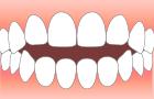 前歯がうまく閉じられない