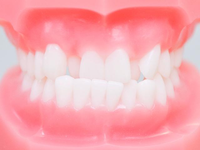 悪い噛み合わせが顎関節症を引き起こす